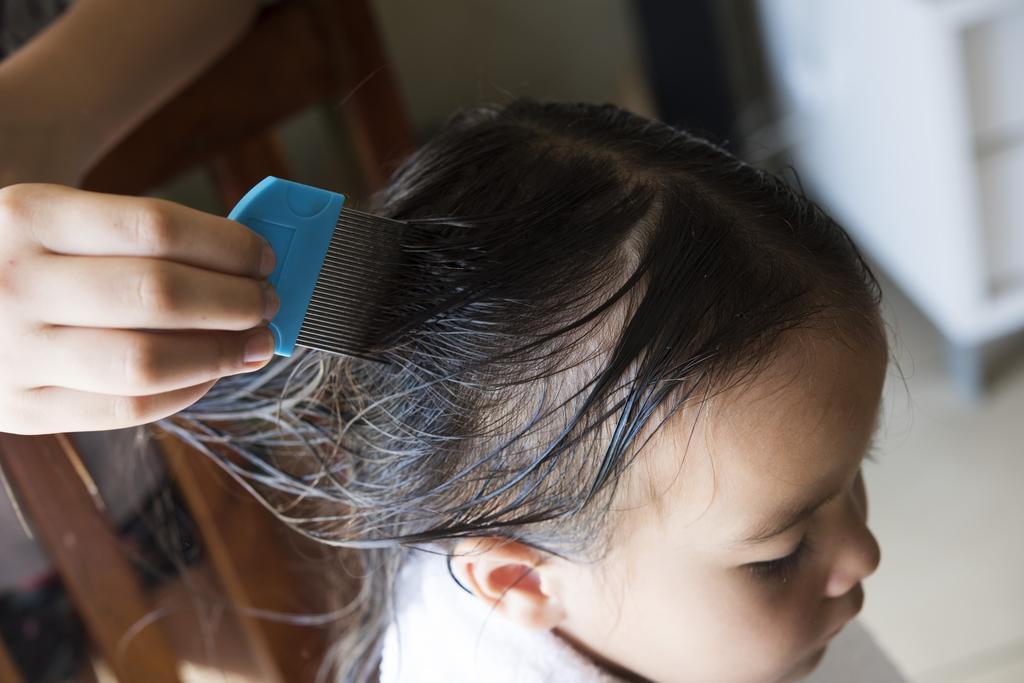 Cómo prevenir y eliminar los piojos de la cabeza