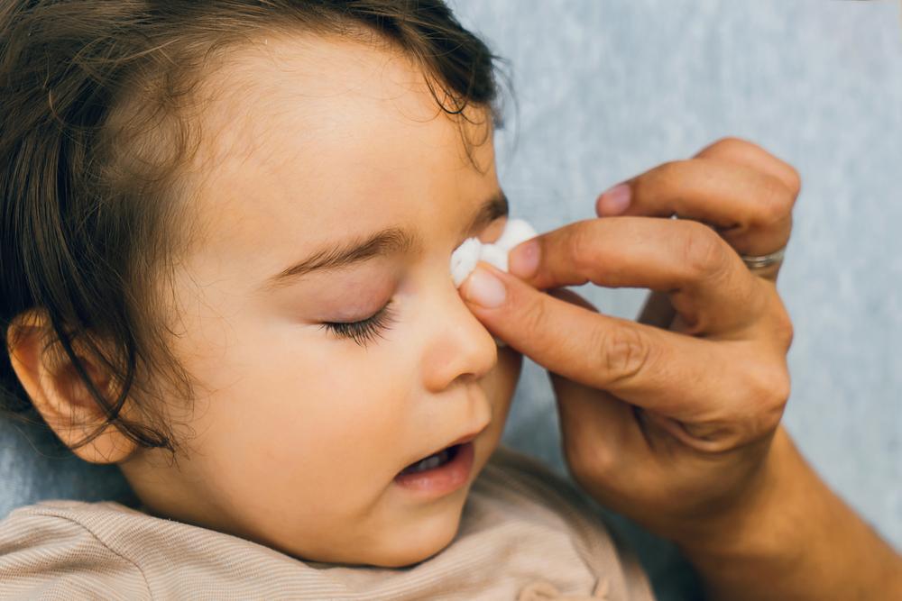 Conjuntivitis bacteriana en niños: síntomas y tratamiento