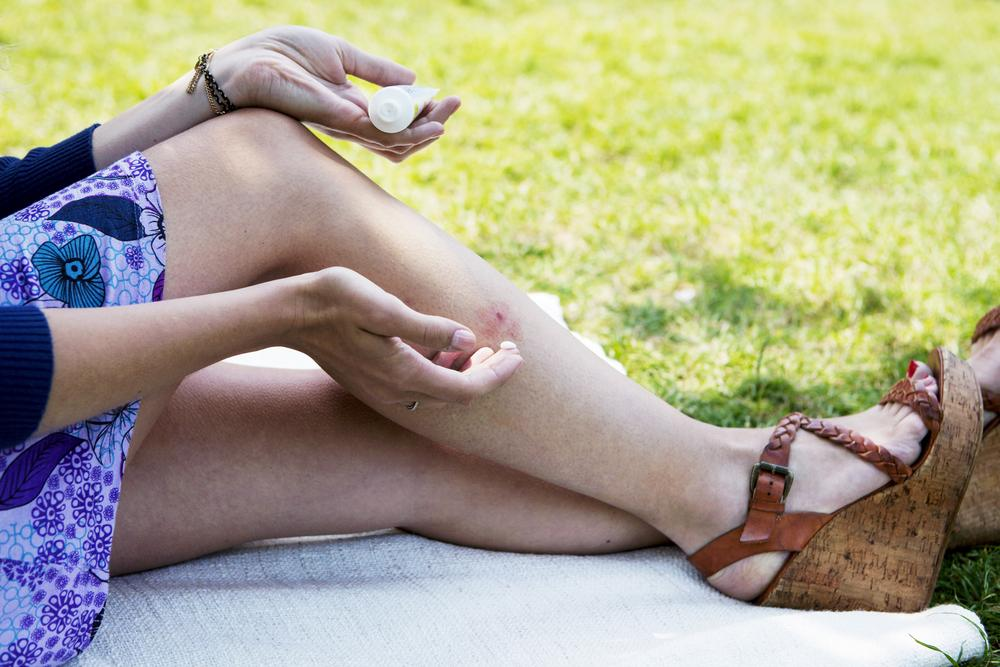 enfermedades de verano por picaduras