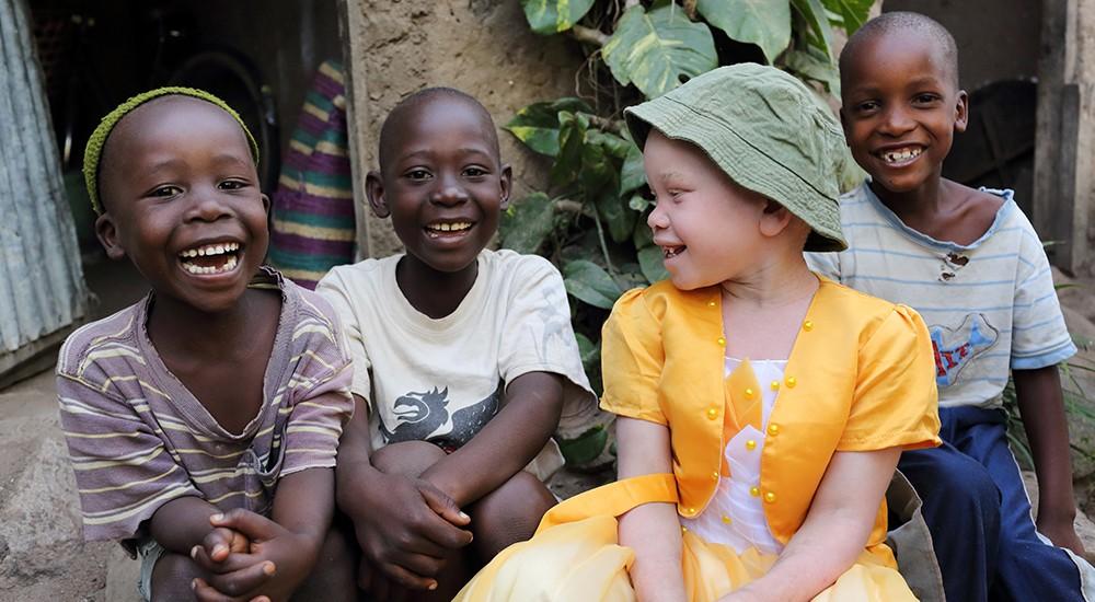 Ser albino no es una enfermedad, es una condición. ¡Conoce los tipos de albinismo aquí!