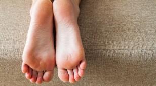 ¿Cómo saber si sufres de hongos en los pies?